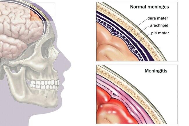 https://img.webmd.com/dtmcms/live/webmd/consumer_assets/site_images/articles/health_tools/visual_guide_meningitis_slideshow/1800ss_medicalimages_rm_brain_meninges_illustration.jpg?resize=650p