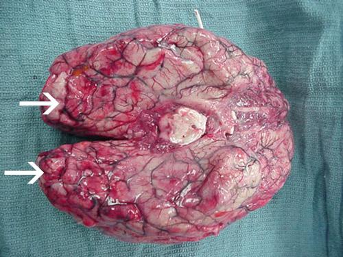 Umfangreiche Blutungen und Nekrosen sind im Gehirn vorhanden, hauptsächlich im frontalen Kortex.