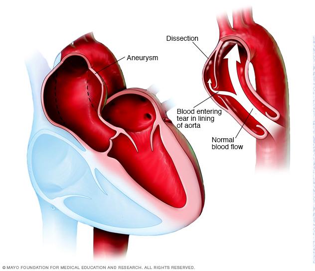 Aortenaneurysma und Aortendissektion