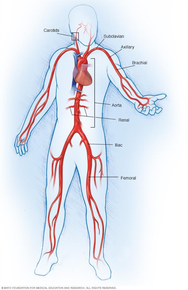 große Arterien