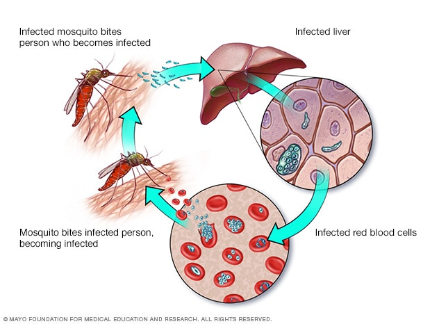 Malaria: Ursachen, Symptome und Behandlung