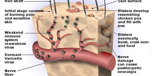 http://medde.org/wp-content/uploads/2020/12/shingles-s2-illustration-of-shingles-virus-493x246.jpg