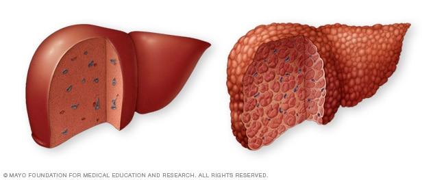 Normale Leber und Leberzirrhose