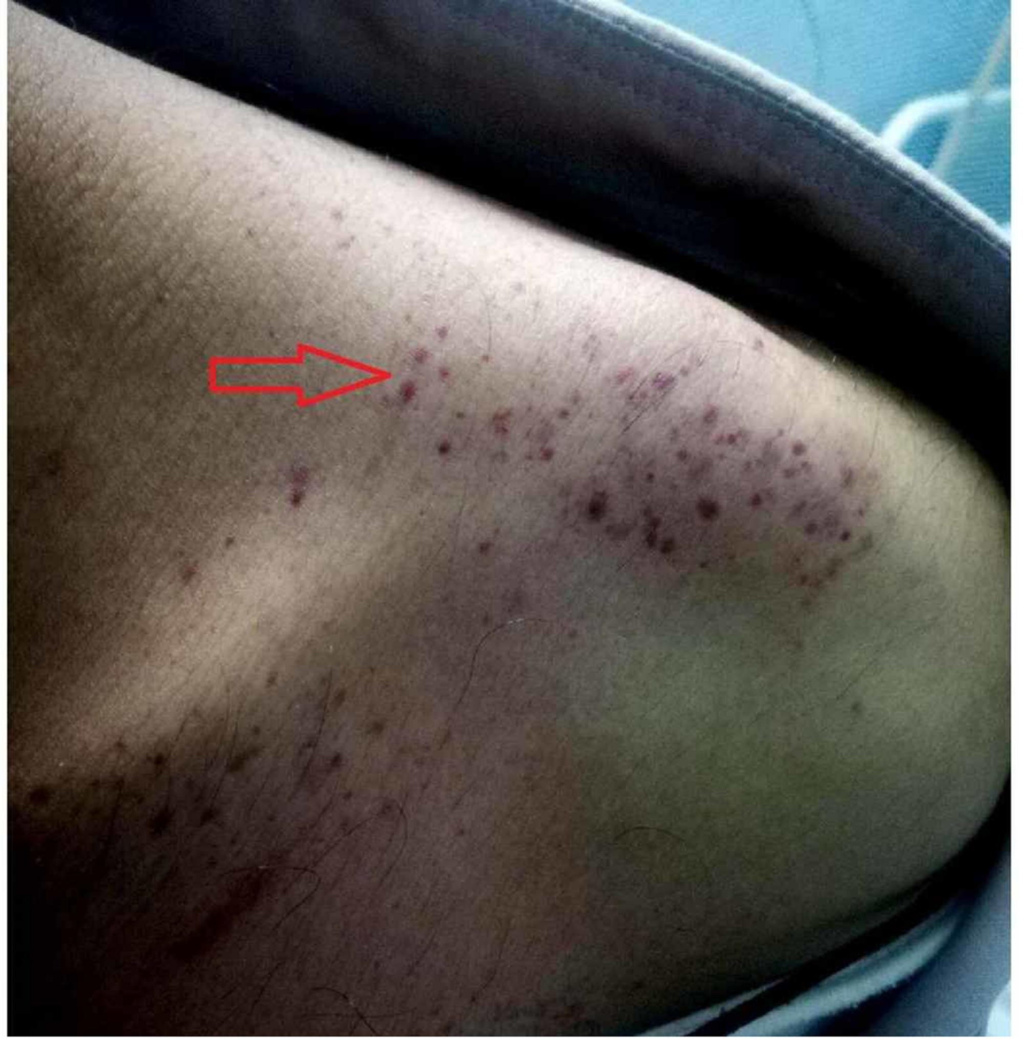 Multiple Purpura und Petechien auf der linken Schulter eines Dengue-Fieber-Patienten